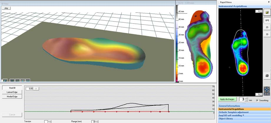 95771cc3b15 Designing an Insole with CAD-CAM Method – Milling for Insole